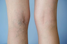 Flebectomia (Stripping venoso) arti inferiori in regime ambulatoriale: